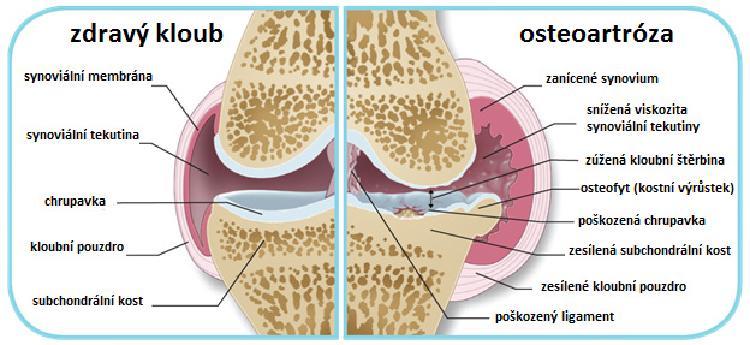 Srovnání zdravého kloubu a kloubu s pokročilým stádiem osteoartrózy.