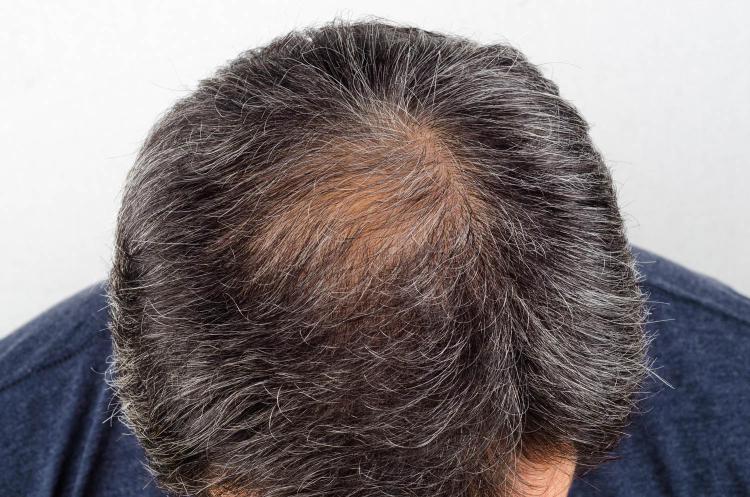 Rýchlý úbytek vlasů ve středních letech může být příznakem nízkého testosteronu.