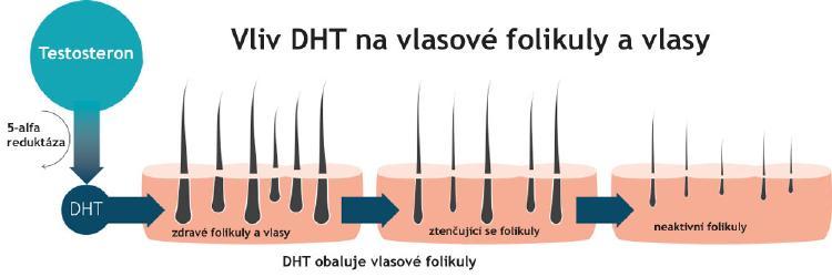 Vliv testosteronu a DHT na plešatost.