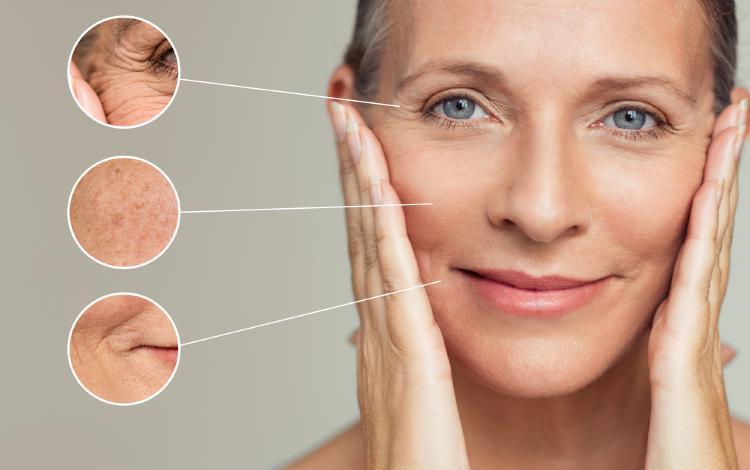 Tvorba vrásek je typickým znakem postmenopauzy.